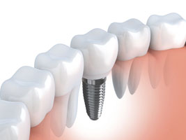 Animation of dental implant supported dental crown