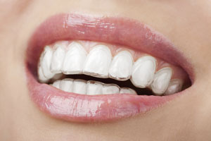 Closeup of teeth with Invisalign aligners in place